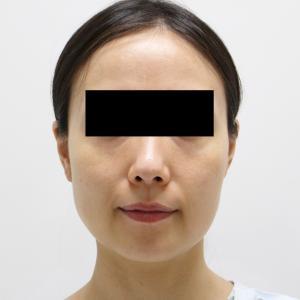 ★124 34歳女性 頬・顎下VASERアキーセル+脂肪注入+エラBOTOX