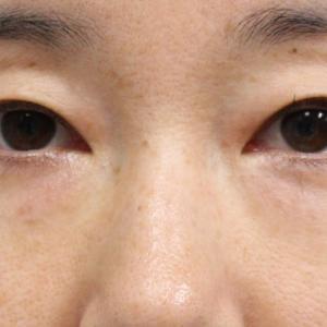 ★172 41歳女性 経結膜脱脂術+眼窩脂肪注入 とりすぎ失敗!?