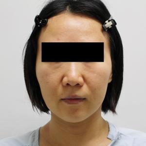 ★125 39歳女性 頬顎下ベイザー+ゴルゴ線剥離+脂肪注入
