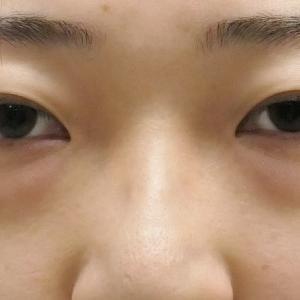 ★174 22歳女性 経結膜脱脂術+眼窩脂肪注入