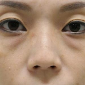 ★175 37歳女性 経結膜脱脂術+マイクロCRF(目の下・中顔面)
