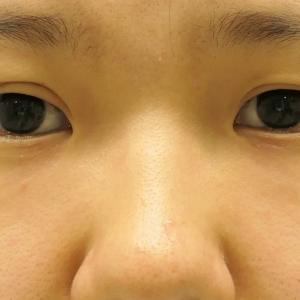 ★176 他院眼瞼下垂手術(切開法)修正+目袋がでて可愛くなるための経結膜脱脂術