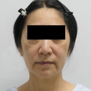 ★128 55歳女性 シンシアの切らないリフト!!(頬顎下VASERアキーセル+脂肪注入)