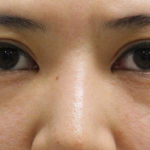 ★189 37歳女性 経結膜脱脂術+眼窩脂肪注入 涙袋あったのです!!