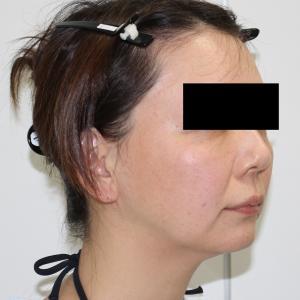 ★51 41歳女性 シグネチャーリフト+頬顎下ベイザー+脂肪注入