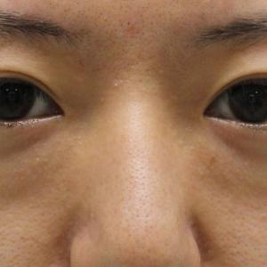 ★196 27歳女性 経結膜脱脂術+眼窩脂肪注入