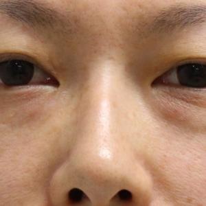 ★201 経結膜脱脂術+脂肪注入+眉下切開+ゴルゴ線剥離