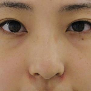 ★204 20歳女性 経結膜脱脂術+眼窩脂肪注入