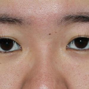 24歳女性 とても重い瞼 セミプレミアムクイック+マイクロカット脂肪除去