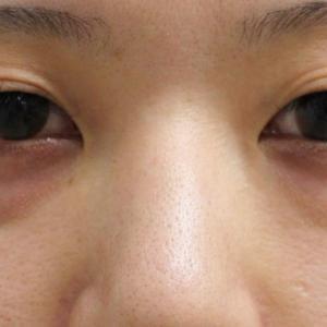 ★207 経結膜脱脂術+眼窩脂肪注入+プレミアムクイック 26歳女性