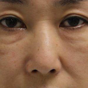 【ゴルゴ線剥離】★208 48歳女性 経結膜脱脂術+マイクロCRF+ゴルゴ線剥離