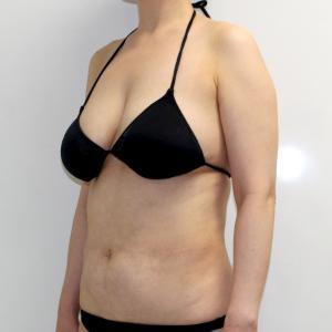 ●64 46歳女性 上腕・肩~ワキ後ろ・肩甲骨上・下背部VASERアキーセル脂肪吸引