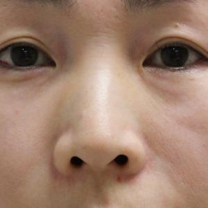 【術後1日目写真あり】★209 46歳女性 経結膜脱脂術+目の下中顔面VASER脂肪注入