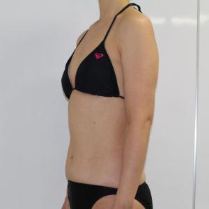 ●65 49歳女性 二の腕・肩~ワキ後ろ肩甲骨上Vaser・アキーセル脂肪吸引