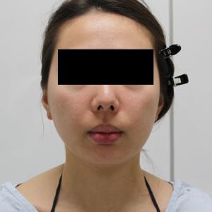 【切らないフェイスリフト】★138 31歳女性 頬顎下VASER・アキーセル+脂肪注入