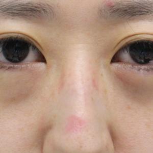 ★210【他院涙袋Hy後】30歳女性 経結膜脱脂術+眼窩脂肪注入