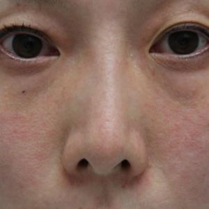 【他院修正】★211 35歳女性 経結膜脱脂術+マイクロCRF 横顔も美しく