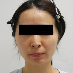 ★69【他院2回術後】36歳女性 3回めの頬アゴVASER脂肪吸引 【術後5年】