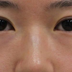 """★218 24歳女性 経結膜脱脂術+眼窩脂肪注入 術後""""全員""""目の下が黒くみえる理由"""