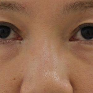 【一年後】★219 37歳女性 経結膜脱脂術+眼窩脂肪注入