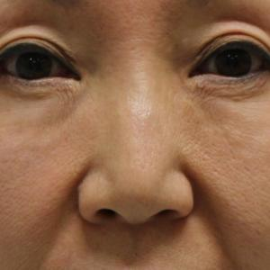 【目周りの注入材が原因の凹凸の治療】★165 53歳女性 経結膜脱脂術+脂肪注入