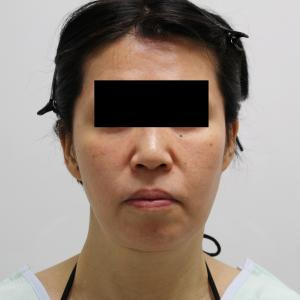 ★52 54歳女性 他院フェイスリフト+脂肪吸引後 シグネチャーリフト+脂肪吸引+脂肪注入