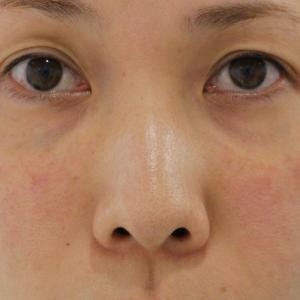 【他院PRPによる眼の下激しい凹凸あり】★221 経結膜脱脂術+マイクロCRF