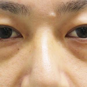 【男前アップ】★222 経結膜脱脂術+眼窩脂肪注入