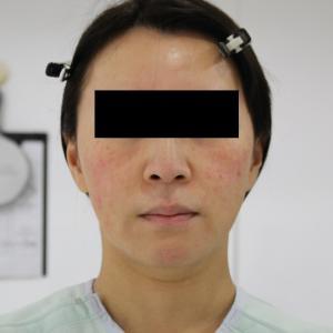 【切らないフェイスリフト】★142 47歳女性 頬アゴ下VASER・アキーセル+脂肪注入
