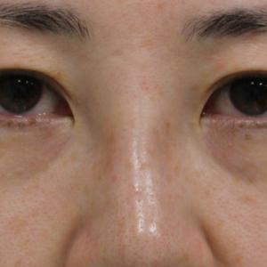 【隠れ涙袋】★232 36歳女性 経結膜脱脂術+眼窩脂肪注入 シミQ-スイッチYAGレーザー
