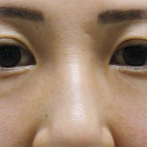 ★233 40歳女性 経結膜脱脂術+ベイザーアキーセル脂肪注入