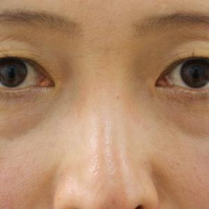 【術後10年】★9経結膜脱脂術+眼窩脂肪注入+セミプレミアムクイック(9年目に眉下切開)