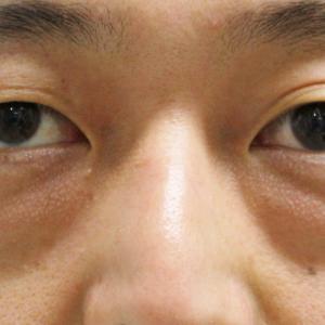 ★235 34歳男性 経結膜脱脂術+眼窩脂肪注入