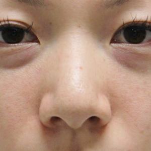 ★237 28歳女性 経結膜脱脂術+マイクロコンデンスリッチファット(目の下・中顔面)