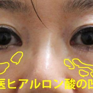 【他院目の下ヒアルロン酸溶解】★255 55歳女性 経結膜脱脂術+マイクロCRF(目の下)