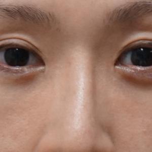 【他院術後・シンシア術後5年】★75経結膜脱脂術+眼窩脂肪注入でクマ再発を改善