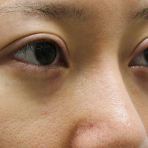 ★265 25歳女性 経結膜脱脂術+眼窩脂肪注入