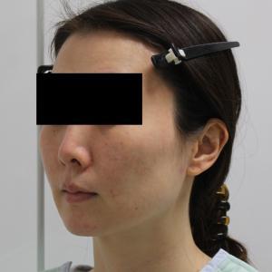 【切らないフェイスリフト】★165 36歳女性 頬あご下VASERアキーセル+脂肪注入