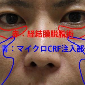★269 36歳男性  経結膜脱脂術+マイクロCRF(目の下・中顔面)