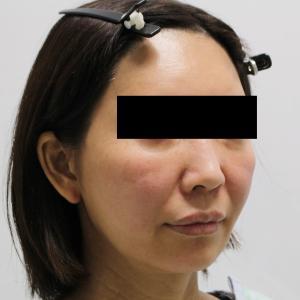 【ゴルゴ線治療】★167 頬あご下VASERアキーセル+ゴルゴ剥離+脂肪注入