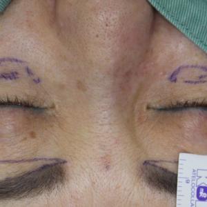 ★270 65歳女性 経結膜脱脂術+眼窩脂肪注入+眉下切開