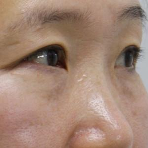★271 46歳女性 経結膜脱脂術+眼窩脂肪注入