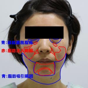 【切らないフェイスリフト】★168 頬アゴ下VASERアキーセル+経結膜脱脂術+脂肪注入