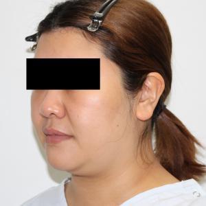 【別人レベル 1年後】★147-2 34歳女性 頬アゴ下VASERアキーセル