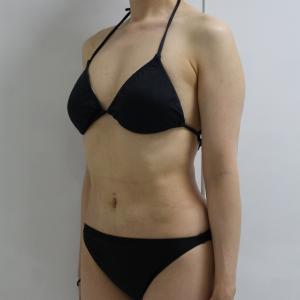 上腕●73 48歳女性 上腕(二の腕)肩・ワキ後ろ~肩甲骨上・下背VASERアキーセル脂肪吸引