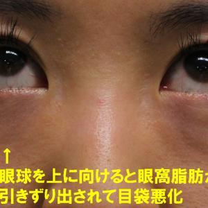 美容外科医が教えてくれない 目袋と眼球の動き(視線)の秘密