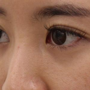 【術後2年】★273 28歳女性 経結膜脱脂術+眼窩脂肪注入