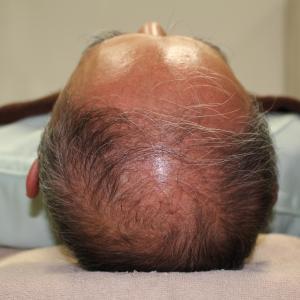 【毛髪再生療法・AGA】諦めない!薄毛・ハゲ治療 7ヶ月で自分の毛がこんなに生える!!