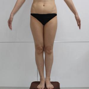 大腿★104 46歳女性 大腿臀部膝周りVASERアキーセル脂肪吸引