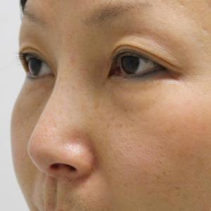 【クレーム症例】★279 41歳女性 経結膜脱脂術+脂肪注入